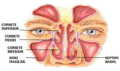 Rinoplastia con reducción de cornetes nasales