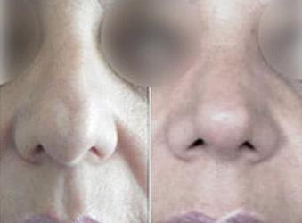 Reducción de la punta nasal, rinoplastia