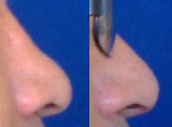Rinoplastia masculina, cirugía de nariz hombre