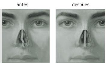 Septoplastia Antes y Después