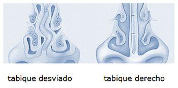 Tabique desviado, septoplastia