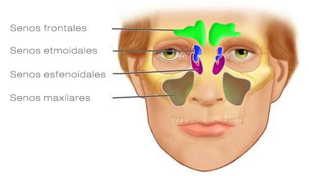 Tratamiento para la Sinusitis o Rinosinusitis