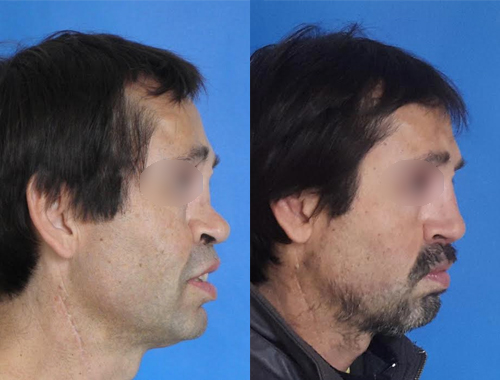 Casos Clínicos Rinoplastía 22 Doctora Navarrete