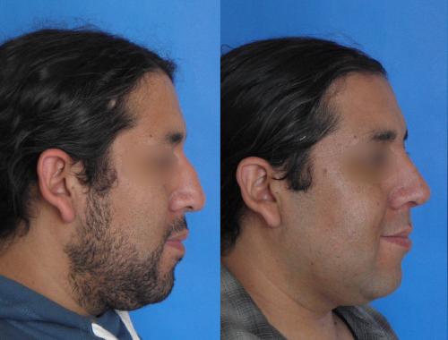 Casos Clínicos Rinoplastía 18 Doctora Navarrete