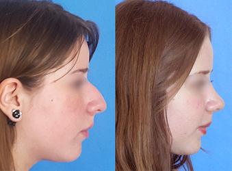 Operación de nariz, antes y después